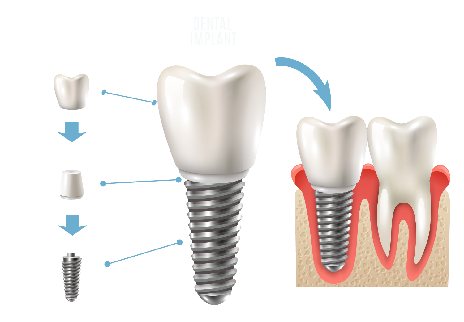 Know about dental implants